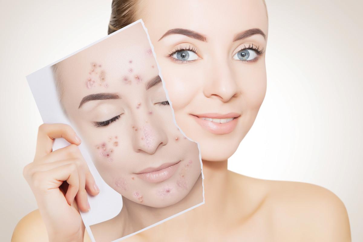 Come combattere l'acne