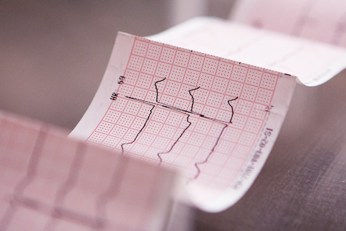Gennaio: Misurazione della Pressione ed ECG