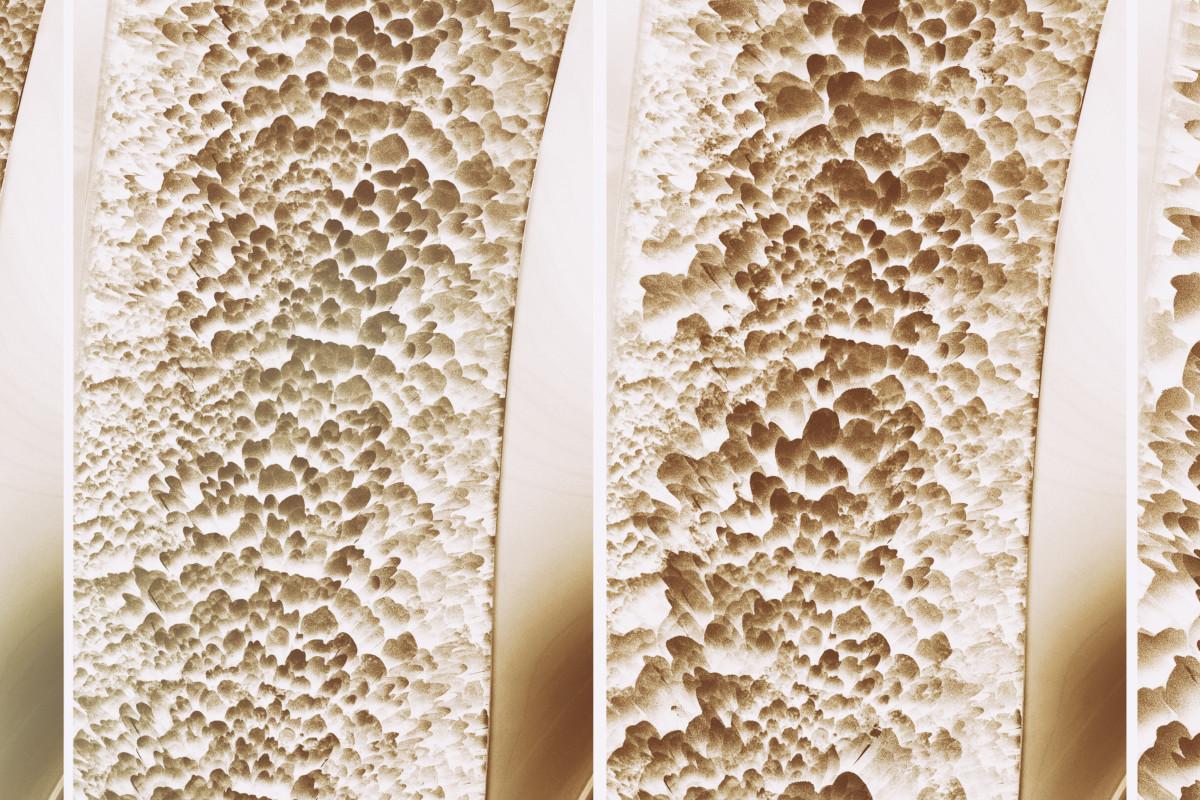 Marzo - Test Osteopenia e Osteoporosi