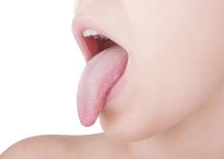 La lingua: lo specchio della salute