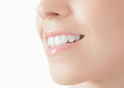 Dicembre: denti bianchi e belli