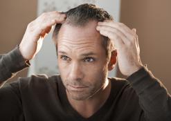 Prevenire e curare l'Alopecia