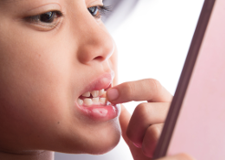L'eruzione dei denti da latte