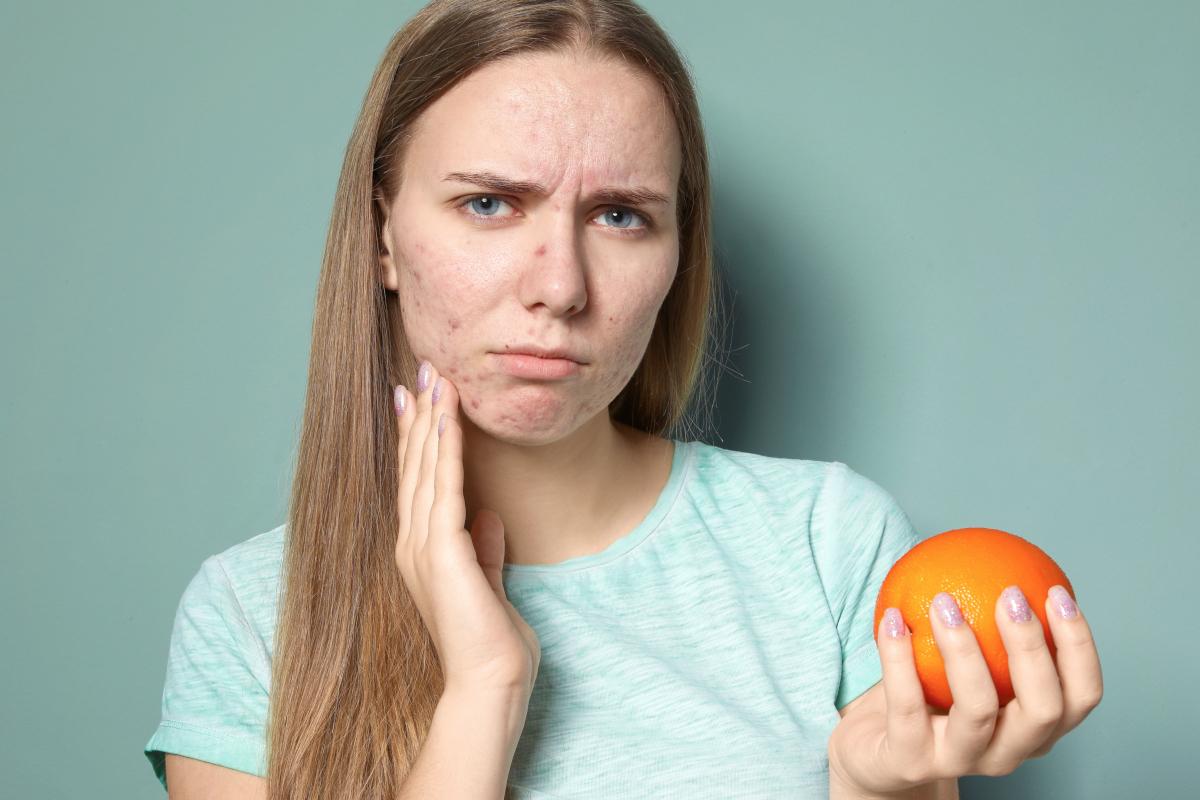 Combattere l'acne a tavola?