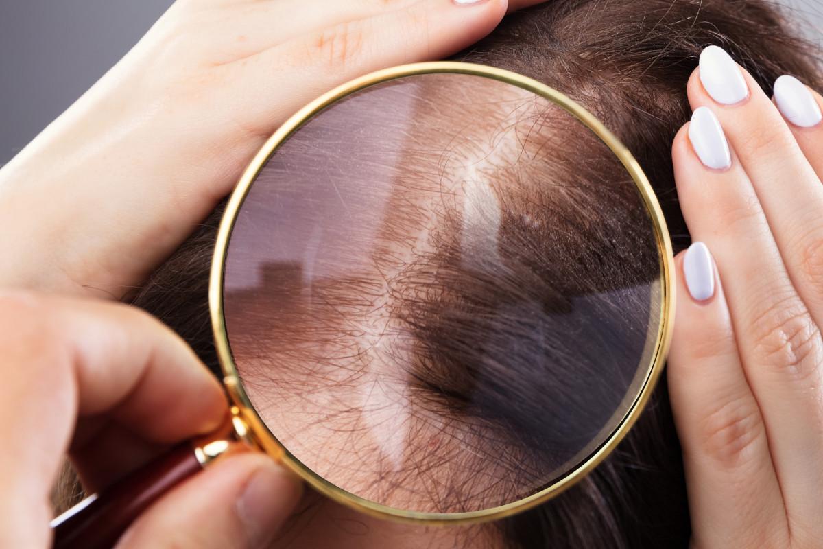 Perdita dei capelli: un problema comune